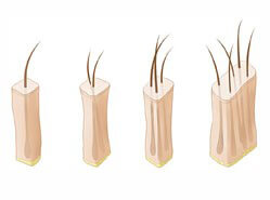 Follicular Units