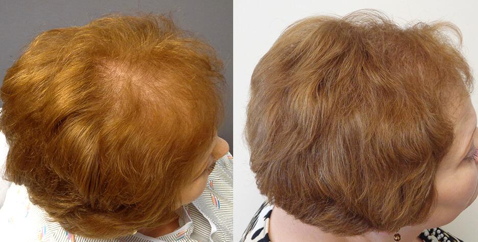 Causes Of Hair Loss In Women Hair Restoration In Atlanta Ga