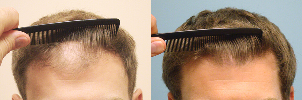 Post-Operative Hair Transplant Aftercare